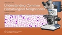 Understanding Common Hematological Malignancies